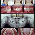 牙齒資料照片