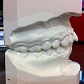 突出的門牙