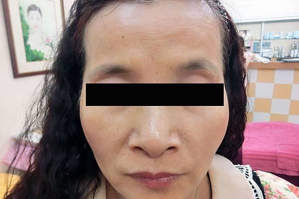 B-下垂稀疏眉毛 (1)