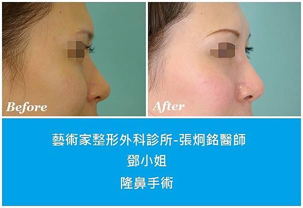 隆鼻手術案例分享-鄧小姐