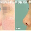 隆鼻手術案例分享-吳小姐