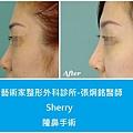 隆鼻手術案例分享-Sherry