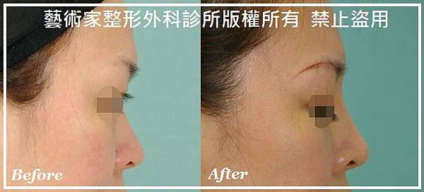 隆鼻手術案例分享-Kelly
