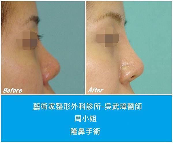 隆鼻手術案例分享-周小姐