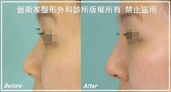 隆鼻手術案例分享-曾小姐