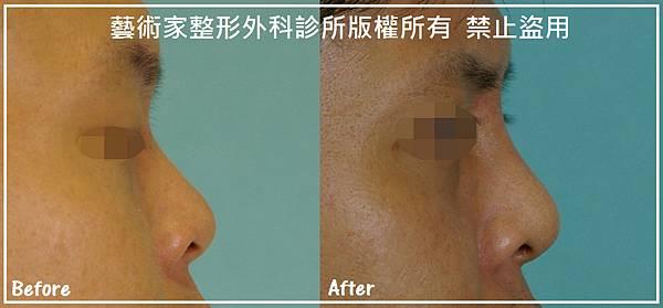 隆鼻手術案例分享-李先生