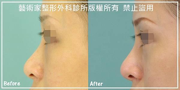 隆鼻手術案例分享-劉小姐
