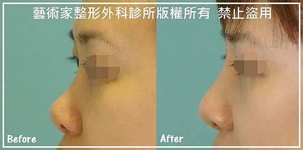隆鼻手術案例分享-許小姐