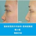 隆鼻手術案例分享-楊小姐