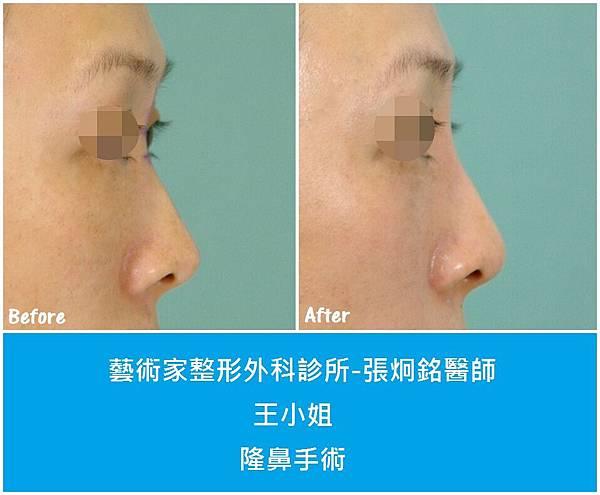 隆鼻手術案例分享-王小姐