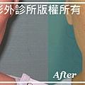 自體脂肪幹細胞豐雙頰-劉小姐