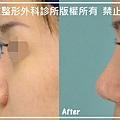 隆鼻手術案例分享-郭小姐