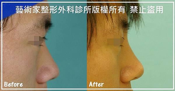 隆鼻手術案例分享-吳先生