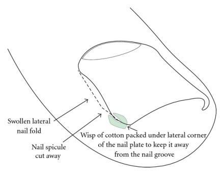 cotton pack.jpg