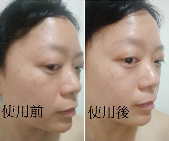 【體驗】用擦的益生菌@利膚敏益康修護霜11