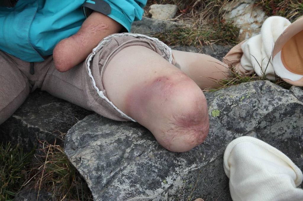 被義肢摩的紅腫近破皮的雙腳