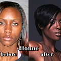 ☆-Dionne﹝Makeover Before & After﹞