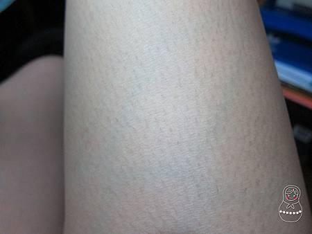 thigh_2015_06_02.JPG