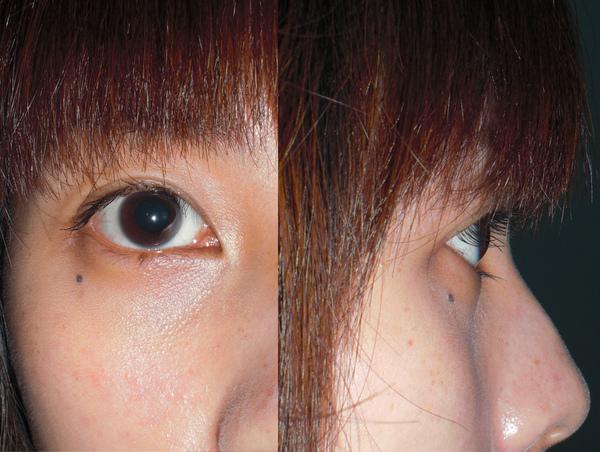 第一次右眼合併.jpg