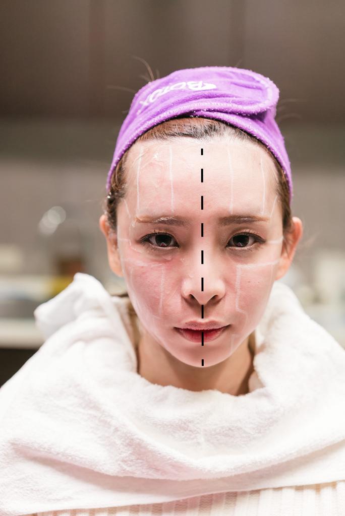 麗安診所海芙音波拉提18半邊臉施打後.jpg