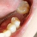 悅庭牙醫植牙24口內.jpg