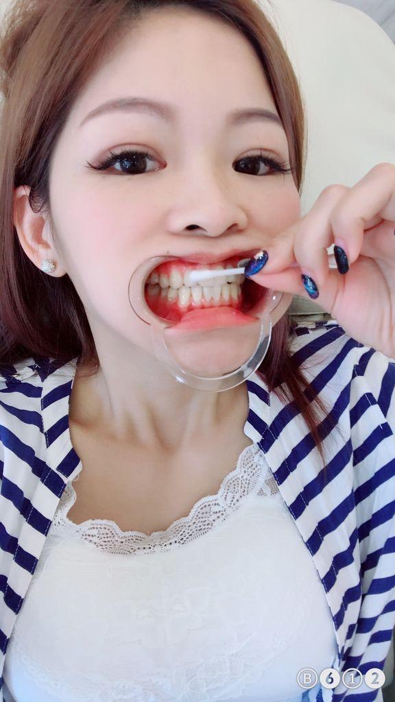塗抹凝膠-台中牙齒美白推薦
