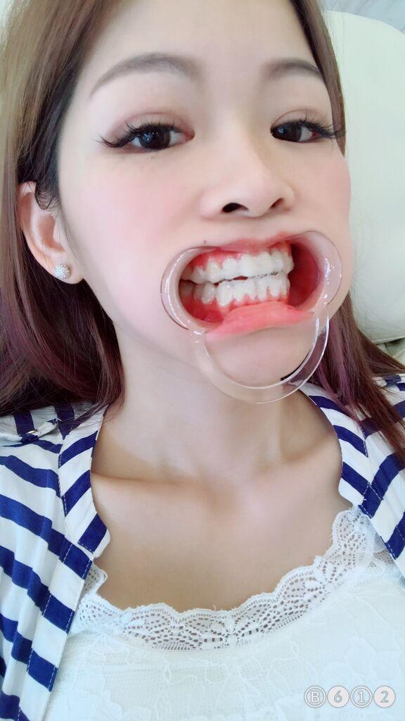 完成塗抹凝膠-台中牙齒美白推薦