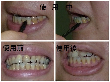 牙刷1.jpg