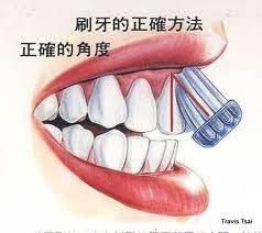 貝氏刷牙角度