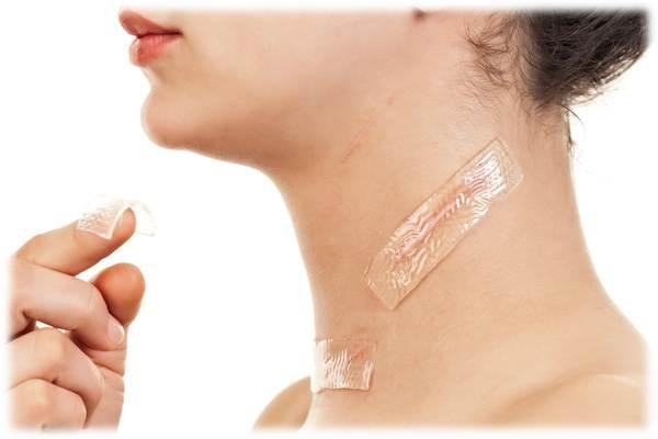 疤痕貼片(除疤貼片)的用法