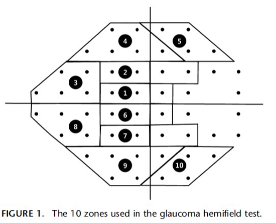 The 10 zones used in the glaucoma hemifield test