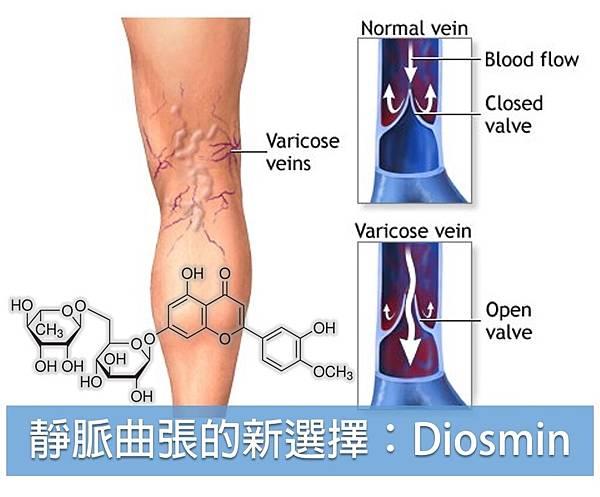 靜脈曲張的新選擇:Diosmin