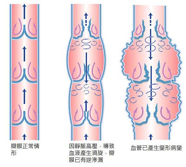 下肢靜脈曲張圖