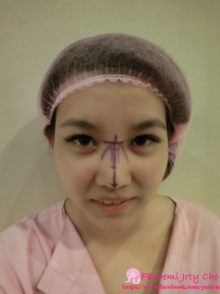 星采大安_敲鼻骨+耳軟骨墊鼻頭+卡麥拉三段式隆鼻_Demi11