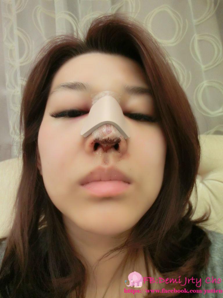 星采大安_敲鼻骨+耳軟骨墊鼻頭+卡麥拉三段式隆鼻_Demi14