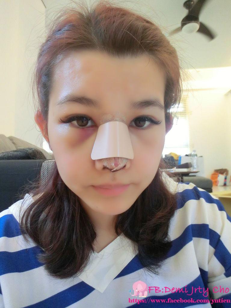 星采大安_敲鼻骨+耳軟骨墊鼻頭+卡麥拉三段式隆鼻_Demi24