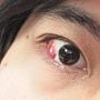 结膜下出血.jpg