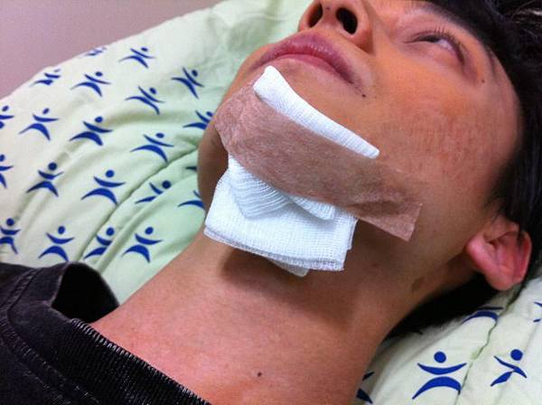 Circus的Eason拍寶島大爆走受傷縫8針3.JPG