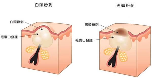 粉刺的形成.jpg