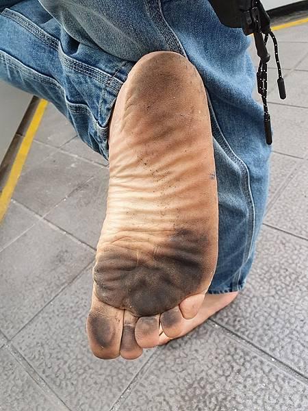 黑腳底板是健康快樂的象徵 赤腳生活的榮耀