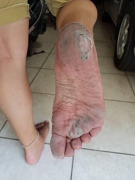 磨出水泡的腳