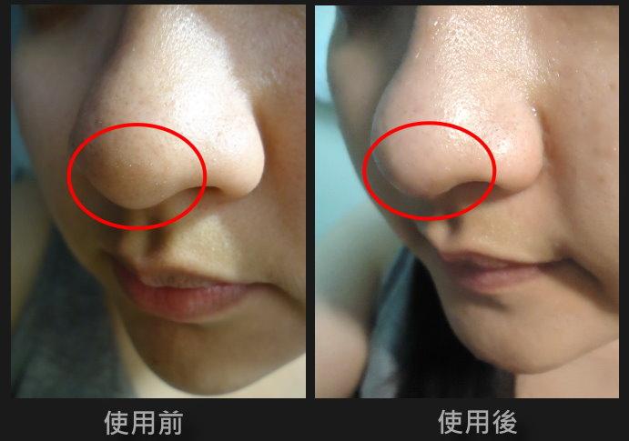 鼻頭對照圖.jpg