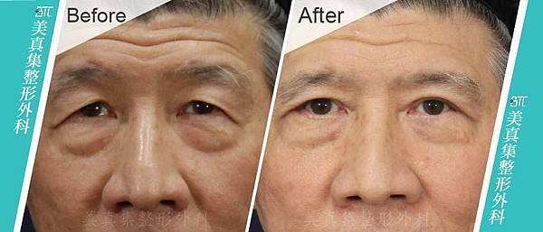 翻轉老化眼 術前術後