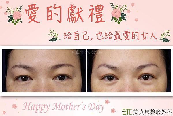 母親節案例-01