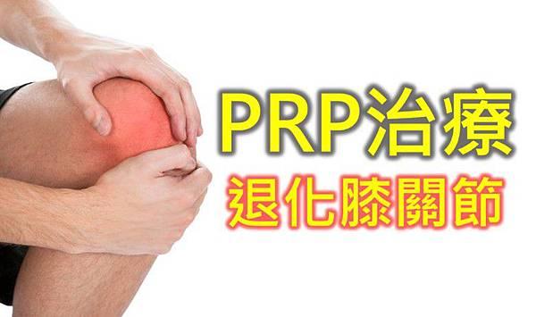 「關節炎 PRP注射」的圖片搜尋結果