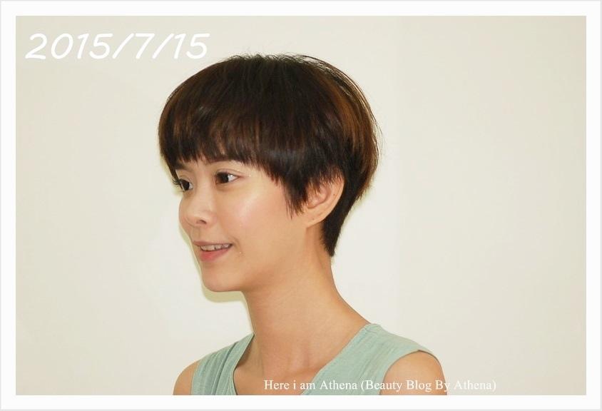 104.7.15矯正後 (9).JPG