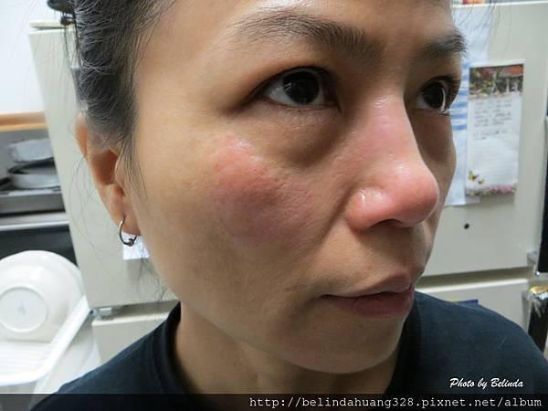 20131117Belinda臉部凍傷