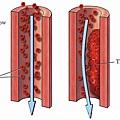通血管古方-1
