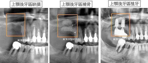 鼻竇腔植牙