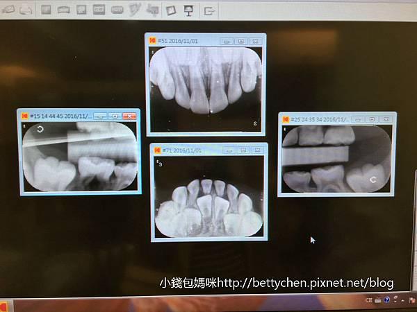 2016-11-01 17.35.35 HDR_meitu_4.jpg